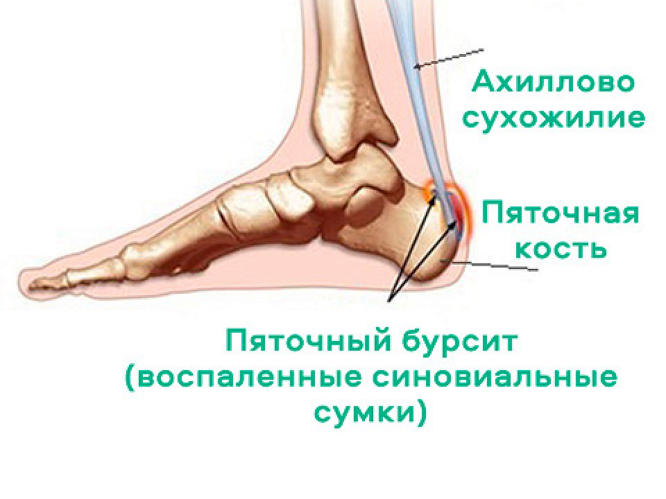 Лечение бурсита стопы мазями